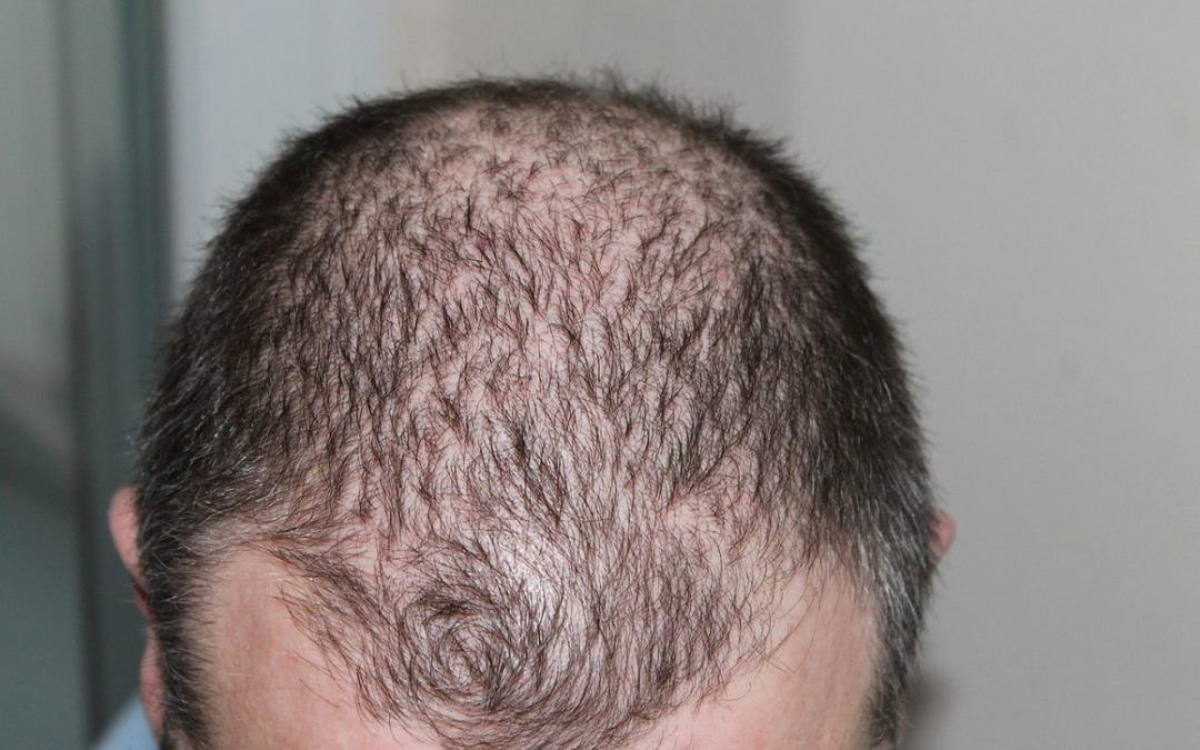What to Ask Your Hair Loss Treatment Specialist in Manchester?